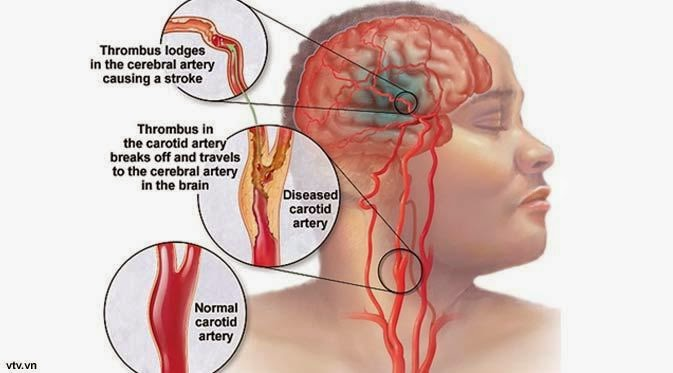 pembuluh darah tersumbat, pembuluh darah tersumbat di kaki, pembuluh darah tersumbat lemak, gejala pembuluh darah tersumbat, pembuluh darah tersumbat di otak, pembuluh darah, pengertian pembuluh darah, penyakit pembuluh darah, pembuluh darah pecah, peredaran darah