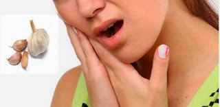 Obat Sakit Gigi Paling Ampuh Dan Cepat Sedunia Untuk Gigi Berlubang  Secara Alami