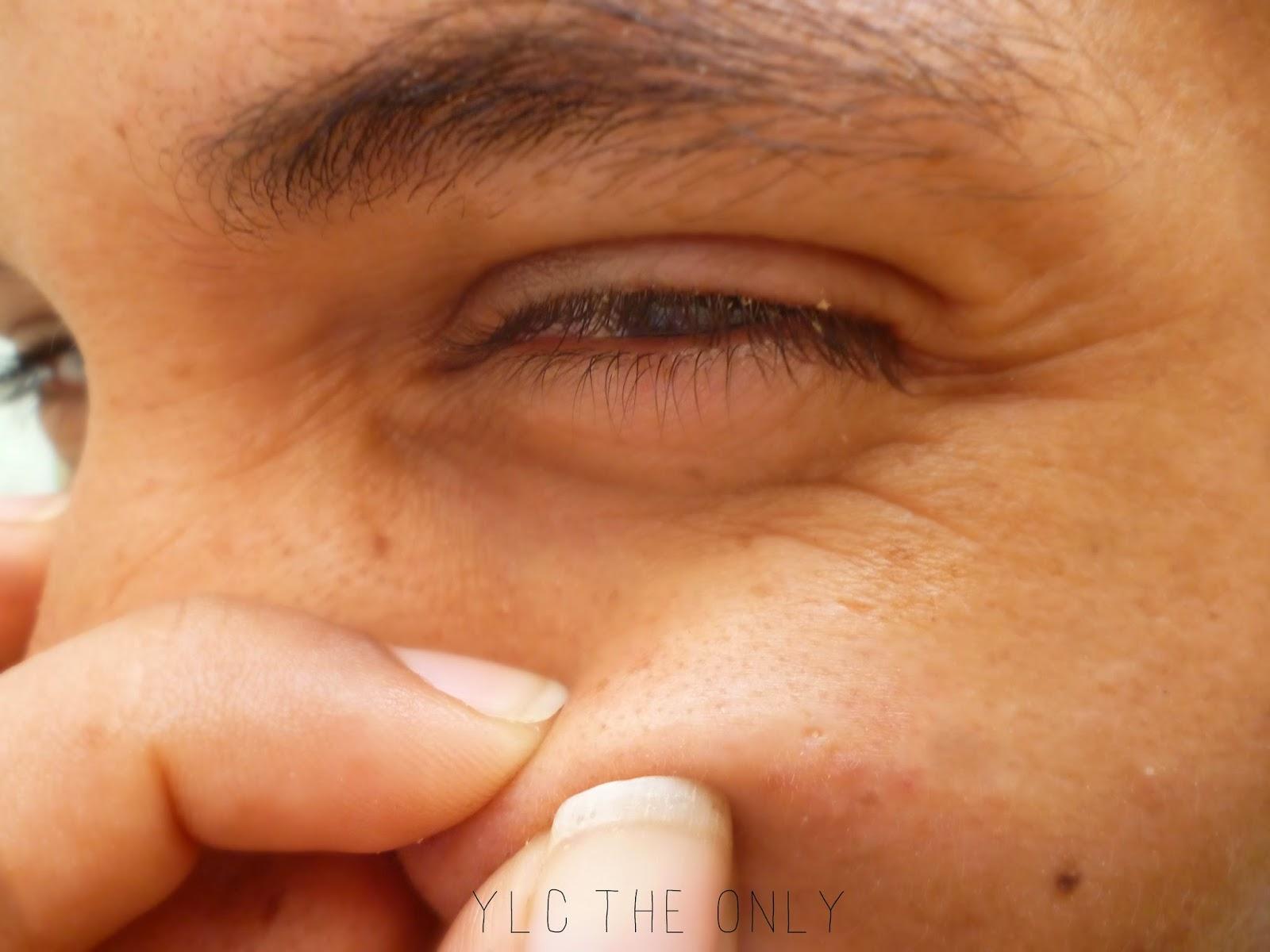 Todas las mejillas en el acné