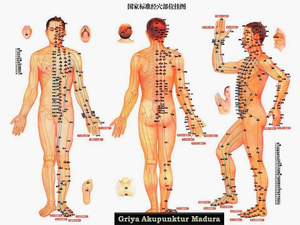 Poster Akupunktur
