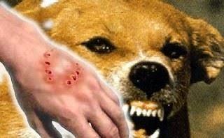 الوقاية من داء السعر او الكلب عند الانسان