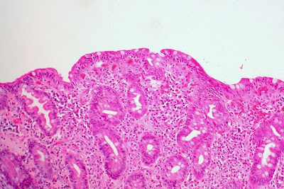 Celiac Sprue, Small Bowel Biopsy