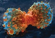 Patogenesis_dan_diagnosa_kanker_paru