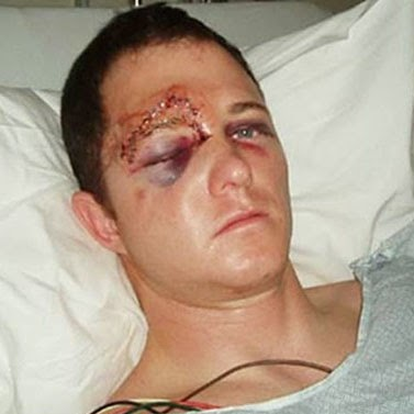 Unpublished photo of Officer Darren Wilson of Ferguson, Missouri Police Department in hospital after facial reconstruction surgery to repair the orbital blowout fracture sustained to his eye socket.