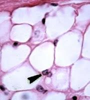Understanding adipocytes
