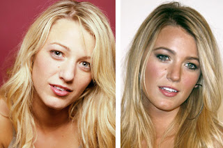 chatter busy blake lively nose job