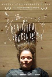 Watch My Beautiful Broken Brain Online Free Putlocker