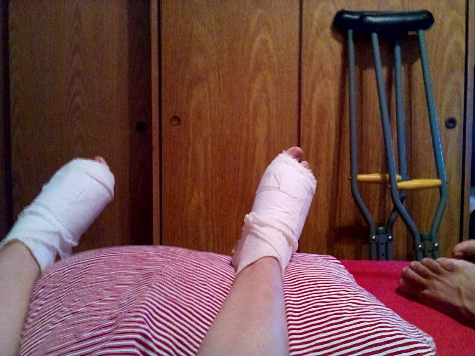 Mi operacion de juanetes ambos pies dia 6 curaciones for Operacion de pies