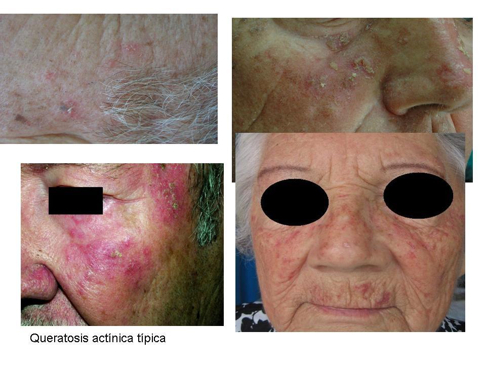 Lentigo | Doctor | Patient