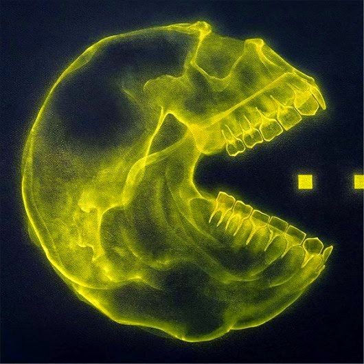 Pac-man rayos X, X-ray Pac-Man