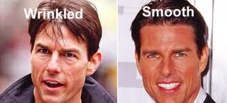 Tom Cruise Plastic Surgery Before and After Nose Jobs