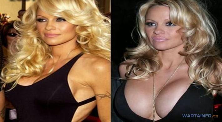 Foto Hot Belahan dada Montok Pamela Anderson Selebritis dengan Implan Payudara Termahal