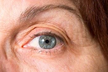 Anti-aging skin treatments