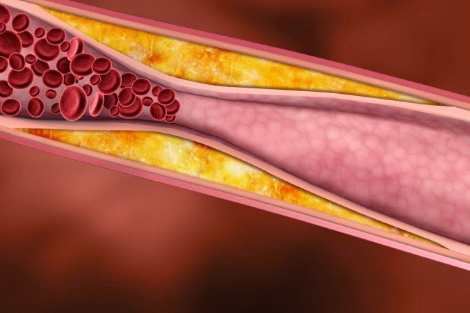 8 Foods That Could Help Unclog Your Arteries