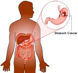 Nova droga traz esperanca para o cancer de estomago