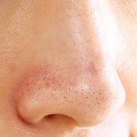 Cara menghilangkan komedo di wajah secara alami