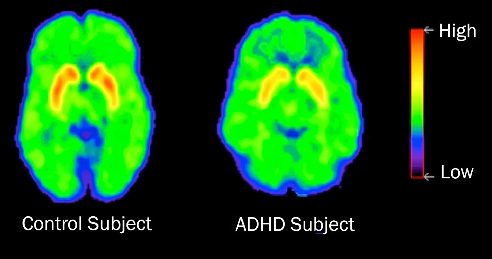 ADHD Symptoms and Treatment