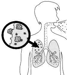 Bacterias de Tuberculosis TBC o TB para colorear pintar