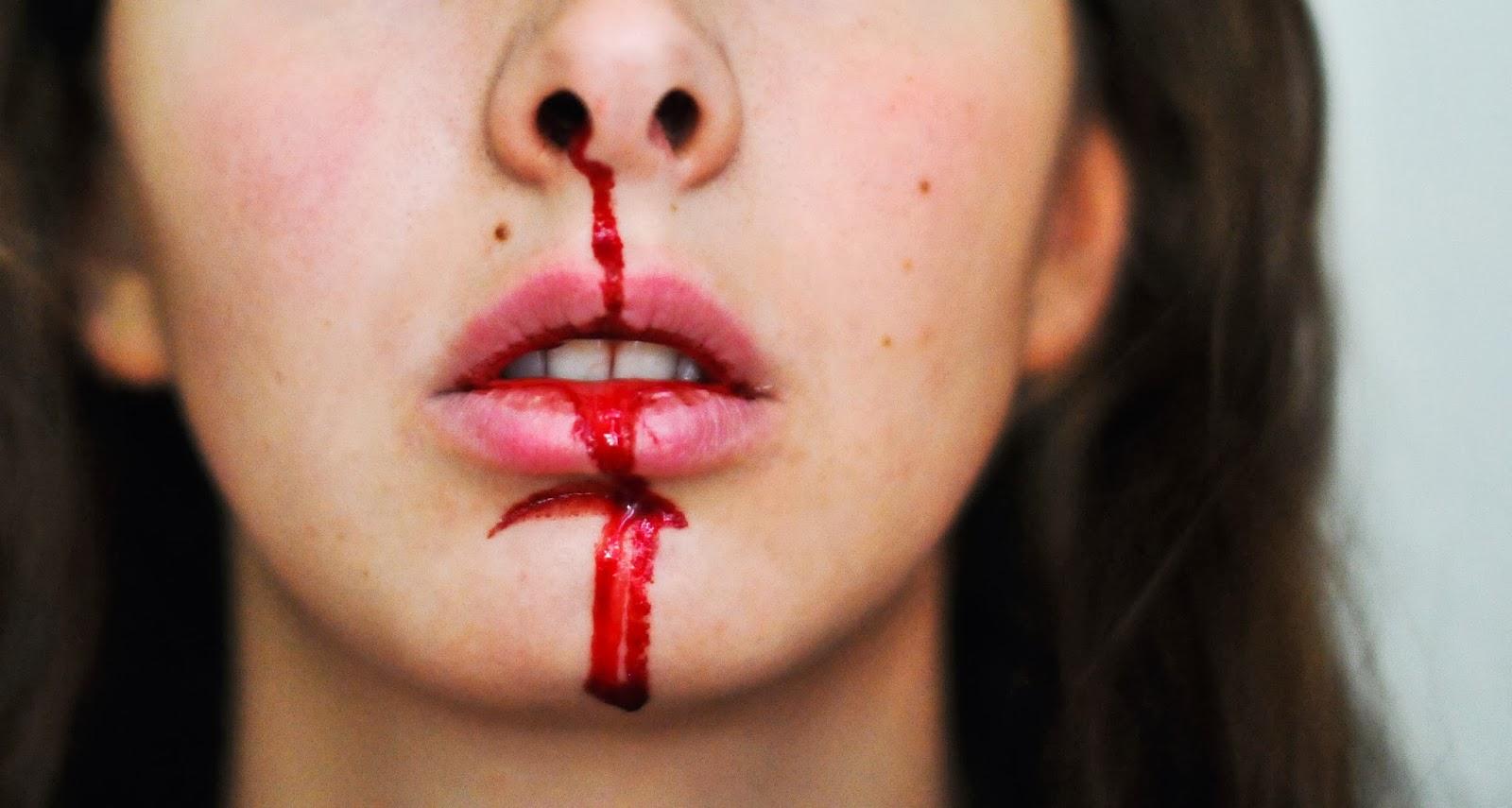 varför blöder jag näsblod