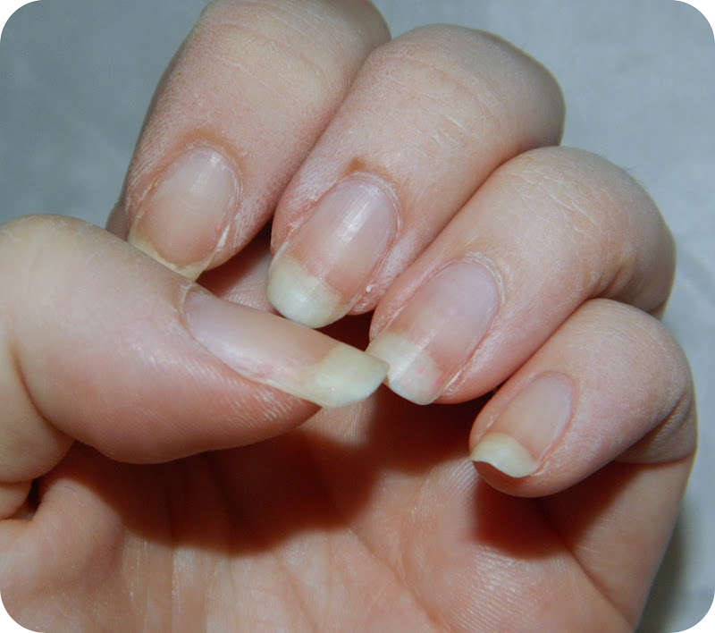 how to stop peeling skin around nails