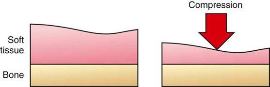 compression force examples. applies compression in such a way as to achieve benefits without damaging tissue, usually with the broad-based application of compressive force examples