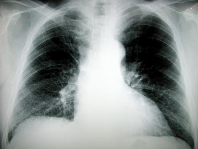 Cancer On Lung X-ray