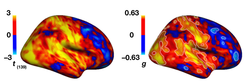 'Idiosyncratic' Brain Patterns in Autism Discovered