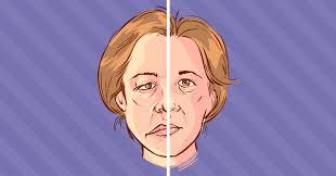 Fisioterapia na paralisia facial periférica: estudo retrospectivo
