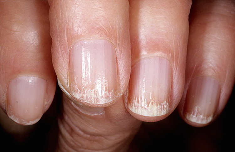 Слоятся ногти секутся волосы