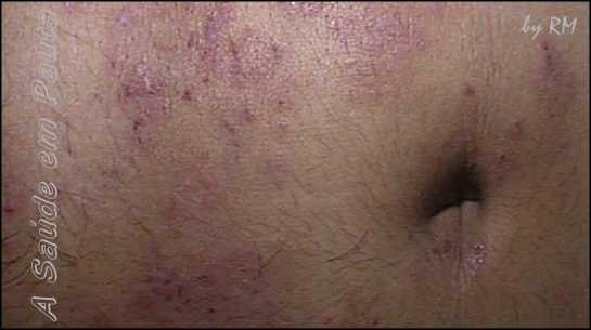 tinea cruris picture #11