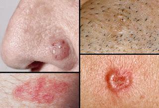 Jeragat teruk, sinar UV rosakkan kulit