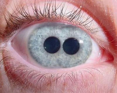 أغرب عين قد تشاهدها في حياتك 3.jpg