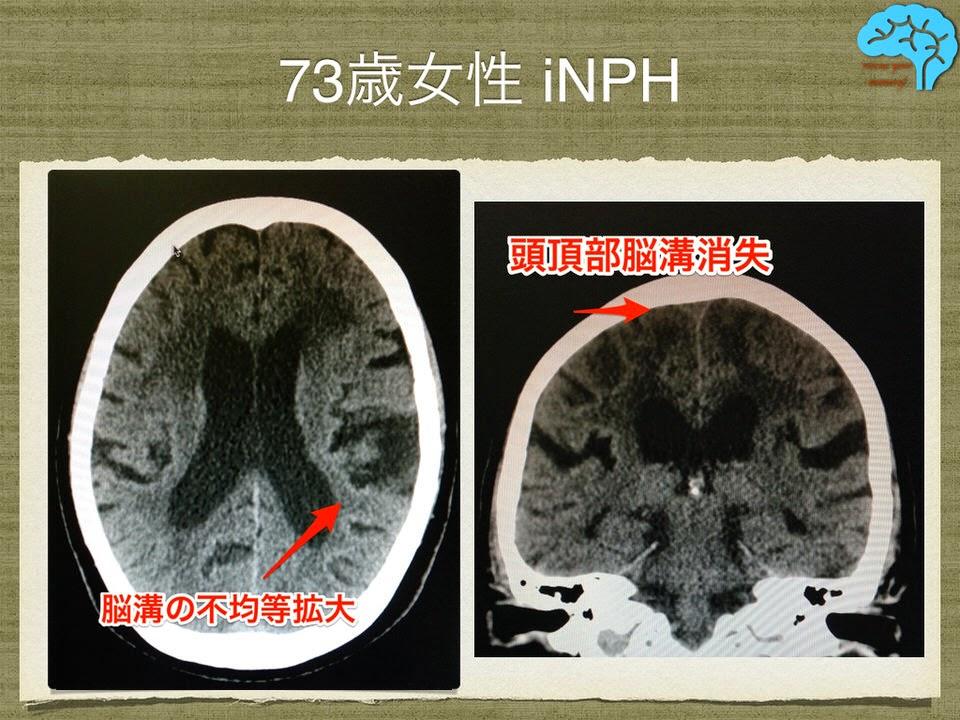 73歳女性 特発性正常圧水頭症 iNPH