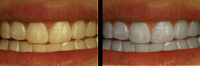 Cara Memutihkan Gigi - cara, tips, memutihkan perawatan menjaga membuat gigi cepat alami yang kuning