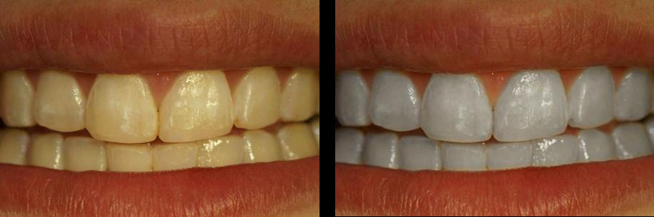 Tips Cara Memutihkan Gigi Secara Alami Cepat