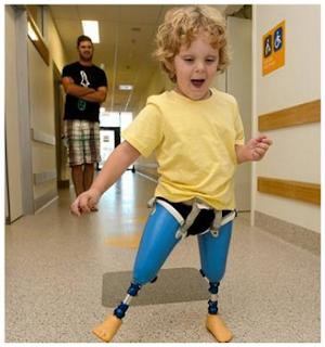 Kisah mengharukan, Bocah ini lahir tanpa tulang kering dan lutut
