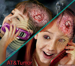 Brain cancer, Tumor Otak