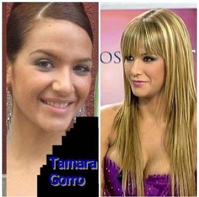 Tamara Gorro antes y después