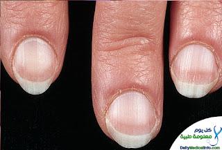 بالصور اظافرك عنوان صحتك Nails+(11)
