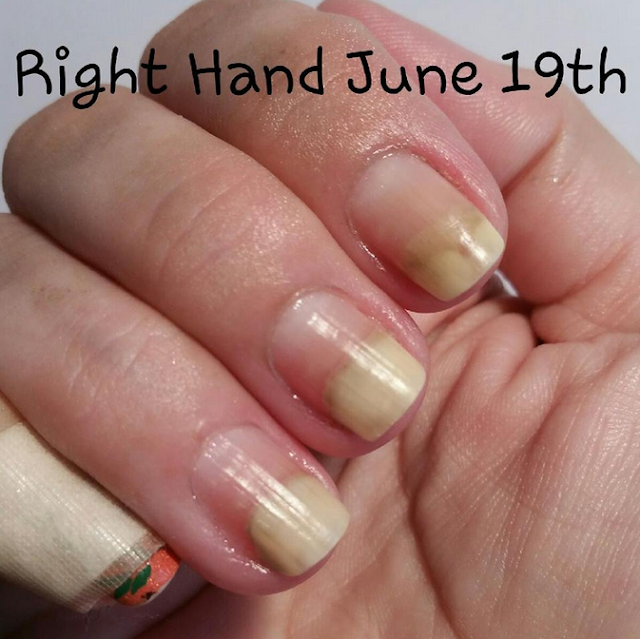 Next Is Leesha 4leesha On Instagram You Can See Her Post Nails Here Who Wound Up With A Staph Infection And Fungus In Addition To The Onchylosis