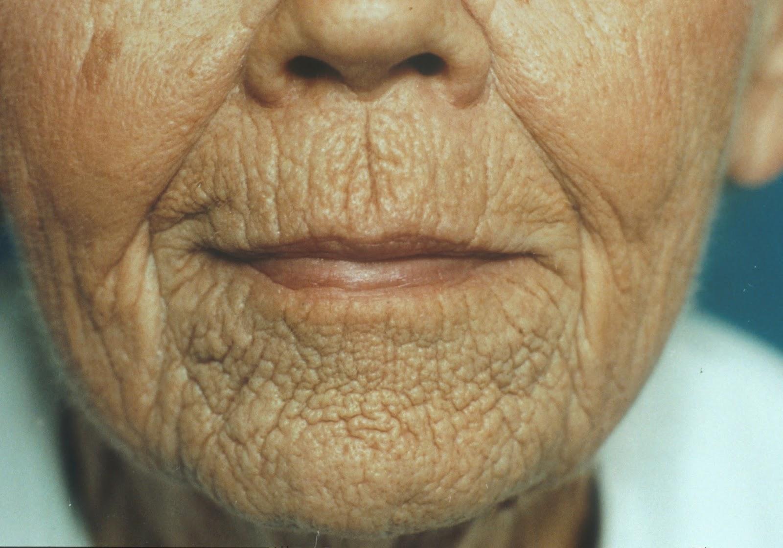 1 mascarilla sencilla para las arrugas de la boca y - Sequedad de boca remedios naturales ...