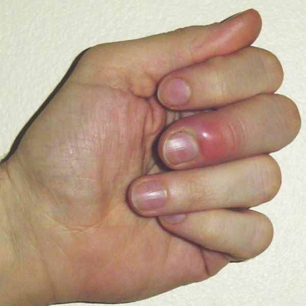 ... and Beauty Tips: How to Cure Nail Fungus | Nail Fungus Treatment