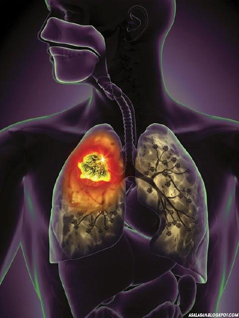 http://asalasah.blogspot.com/2015/08/harapan-baru-pengobatan-penyakit-kanker.html
