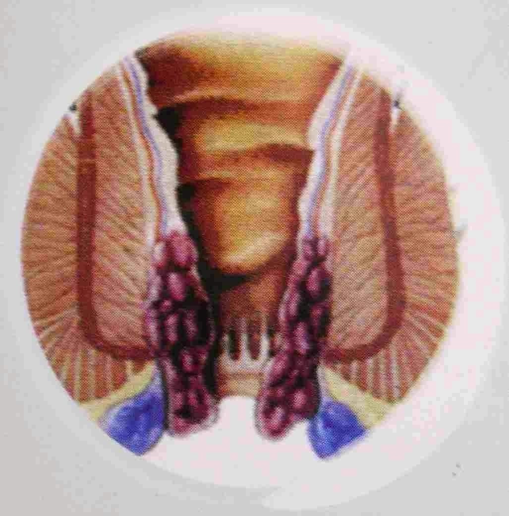 Hemoroid Krim