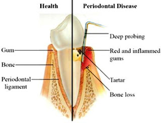 Diabetes and Periodontal Disease: Sweet Tooth Problem