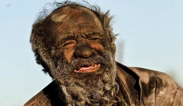 World's Dirtiest Man, No bath since 60 years