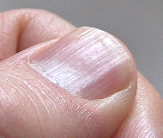Zinc Deficiency And Fingernails 37