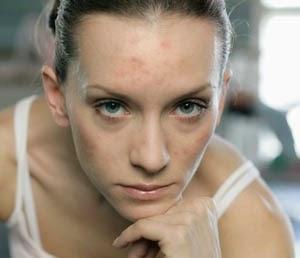 Penyebab Jerawat Di Dahi Dan Tips Mengatasinya Dengan Cepat
