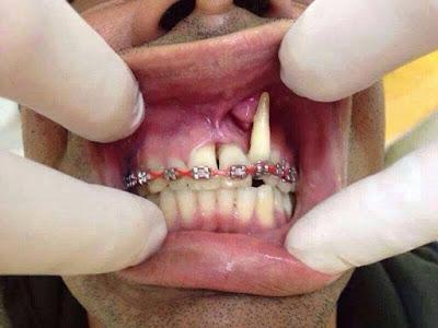 Pemasangan Behel Gigi yang salah