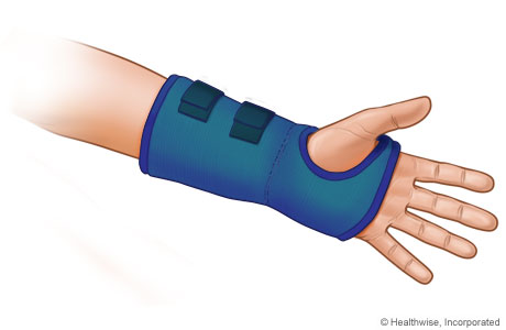 how to use a splint